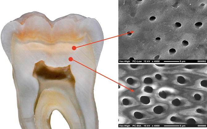 Structure and Ultrastructure of the Hard Tissue of the Human Teeth