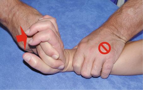 Manuelle Therapie und Rehabilitation der Hand   SpringerLink