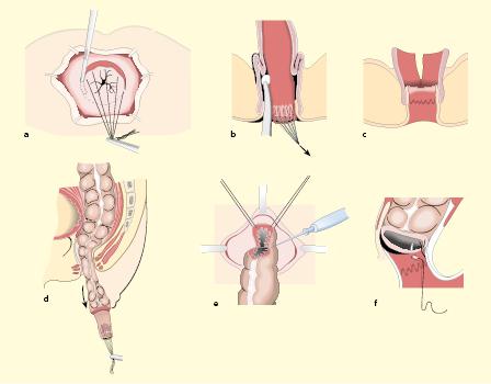 Kinderchirurgie   SpringerLink
