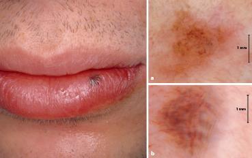 Lippe der flecken auf Was verursacht