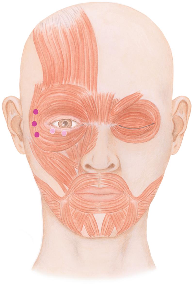Ästhetische Dermatologie | SpringerLink