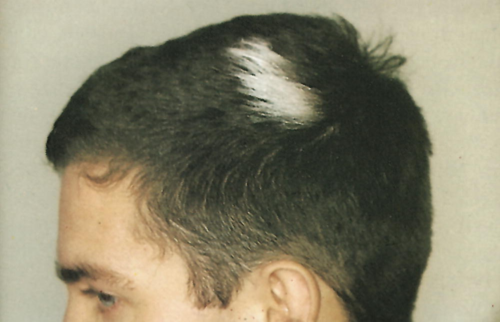 Erkrankungen Der Haare Springerlink