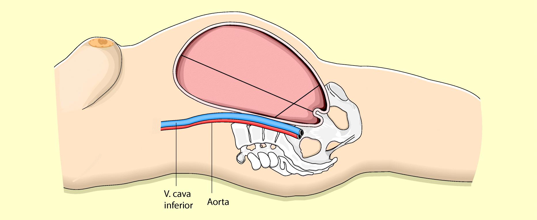 geburtshilfe und erstversorgung des neugeborenen springerlink  vorsicht harnblase ein sensibles organ #6