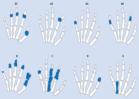 Brachydaktylie Autosomálně dominantní