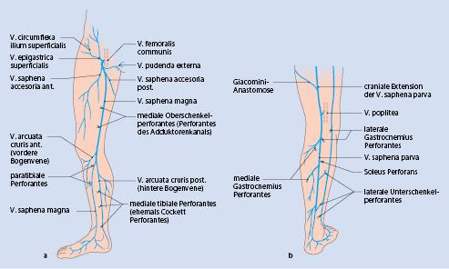 Krankheiten der Venen und Lymphgefäße der Haut | SpringerLink
