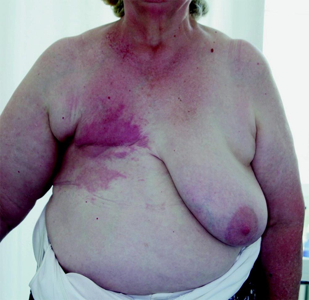 Inflammatorischer brustkrebs