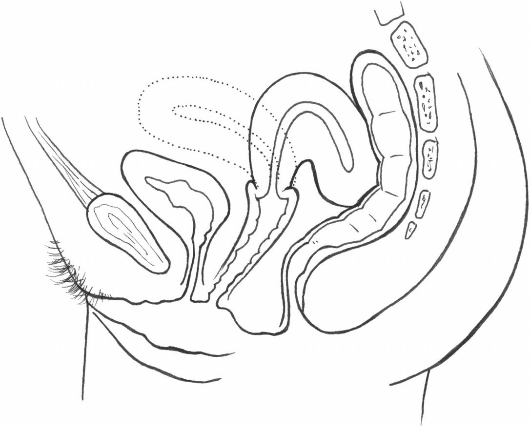 Eine wie aus der sieht senkung gebärmutter Gebärmuttersenkung