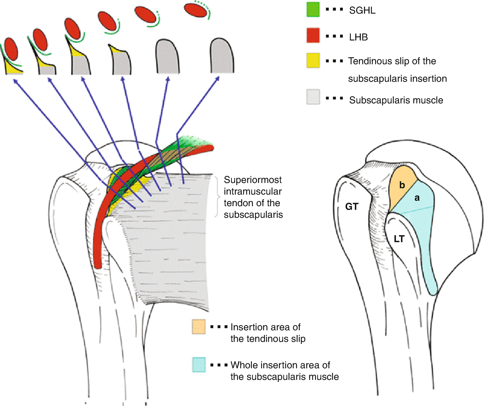 arm tendons diagram the anatomy of the biceps pulley springerlink  the anatomy of the biceps pulley