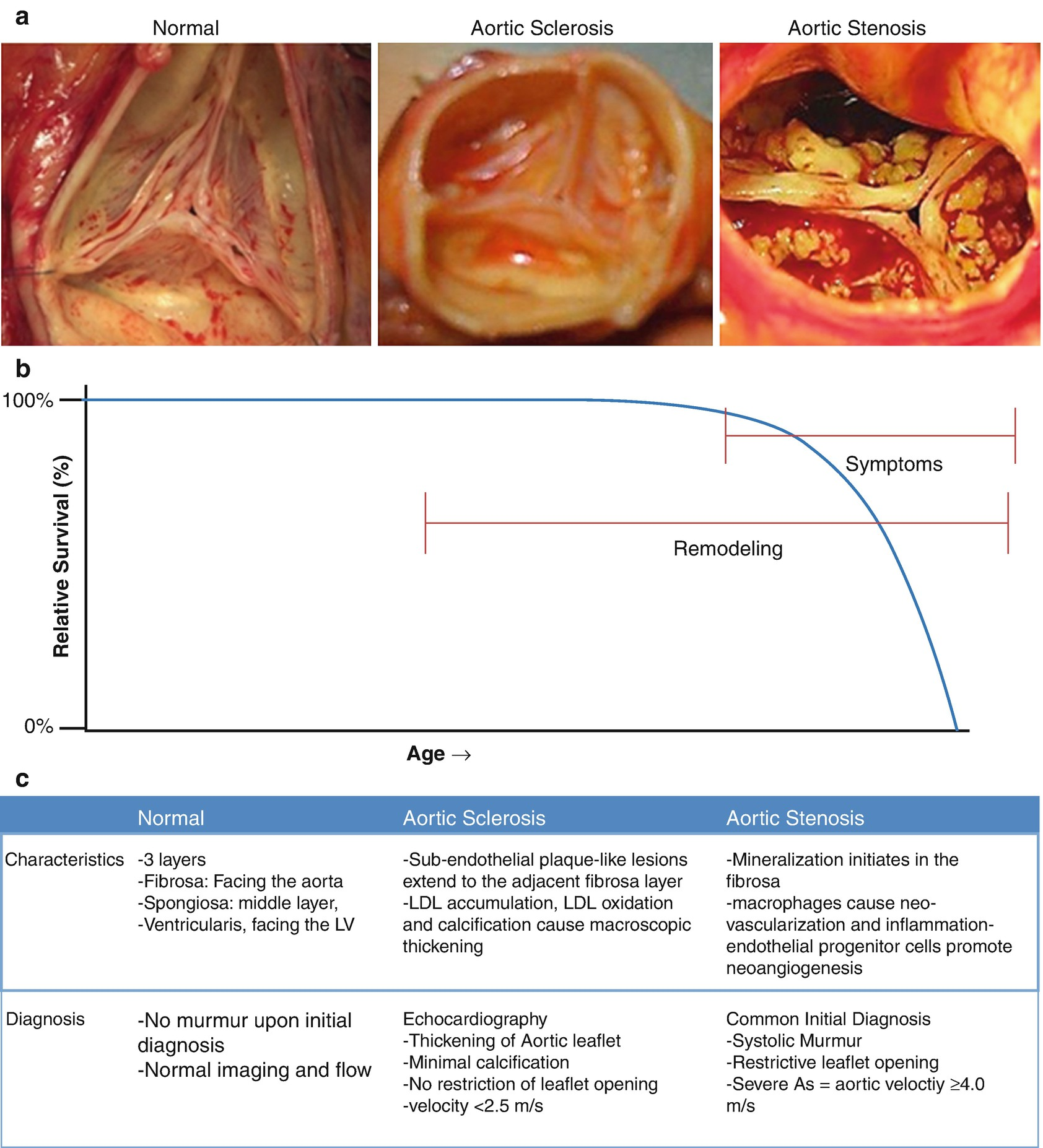 Diagnostic and Therapeutic Targets for Aortic Valve and