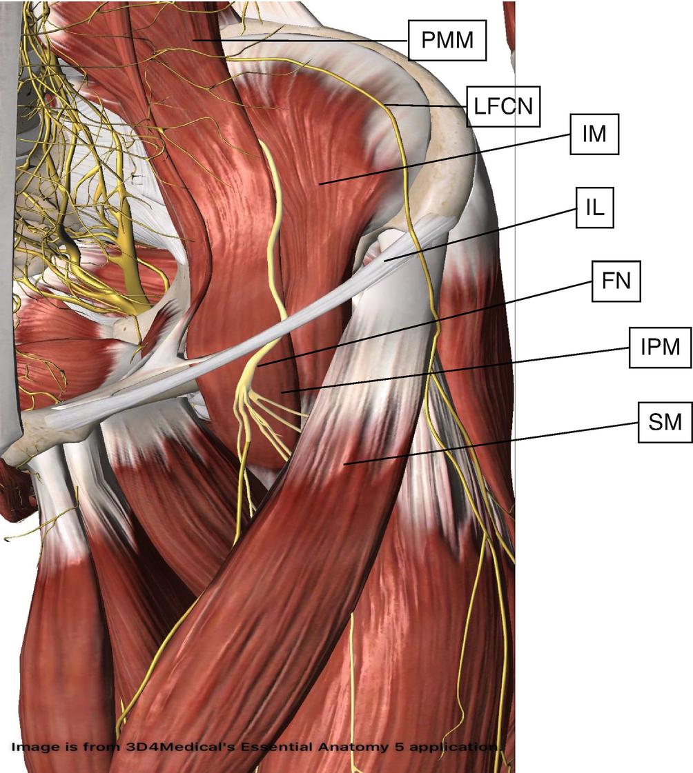 Femoral Nerve Block | SpringerLink