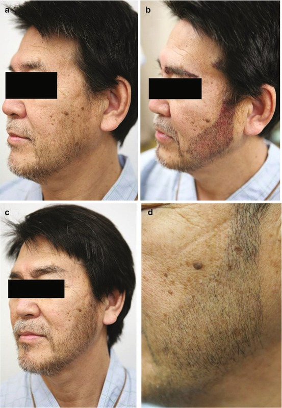 Beard Hair Transplantation   SpringerLink