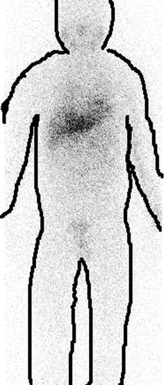 Nuclear Medicine Procedures
