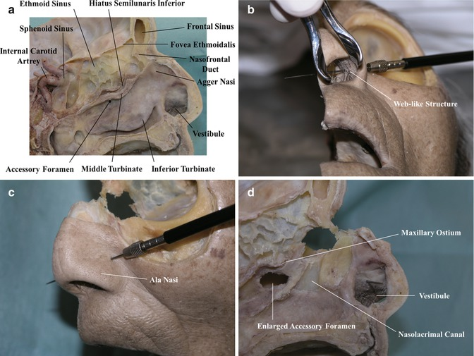 The Sinonasal Anatomy: Endoscopic Lacrimal and Orbital Perspectives ...