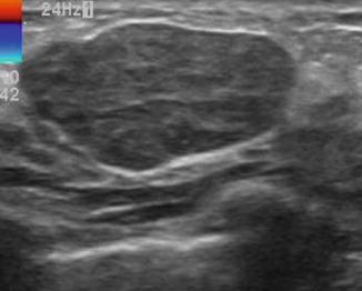 Ultrasound Criteria To Assess Breast Lesions Springerlink
