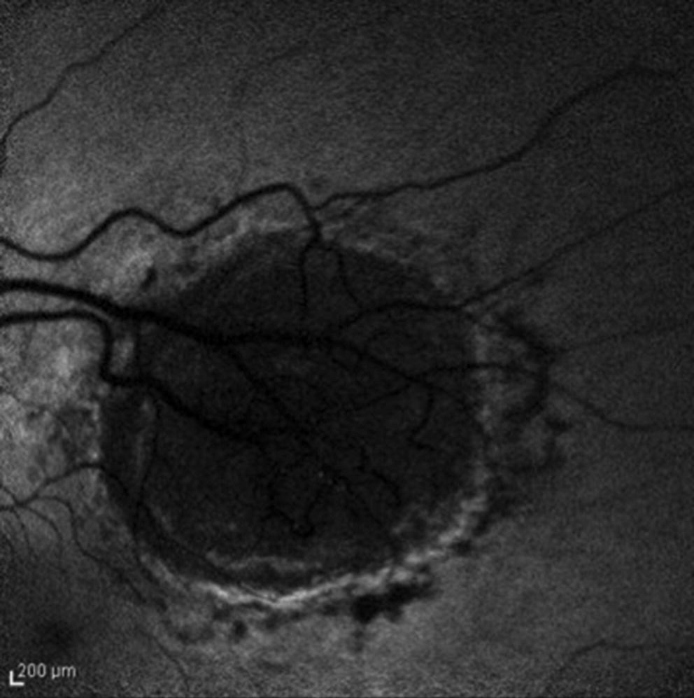 Helioid Choroiditis | SpringerLink