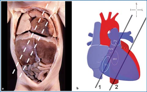The Left Ventricle Short-Axis View | SpringerLink
