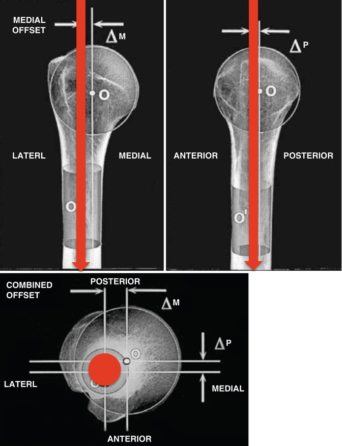 Intramedullary Nail For Proximal Humerus Fractures An Old Concept
