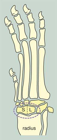 Ameliorați rapid inflamația articulației genunchiului