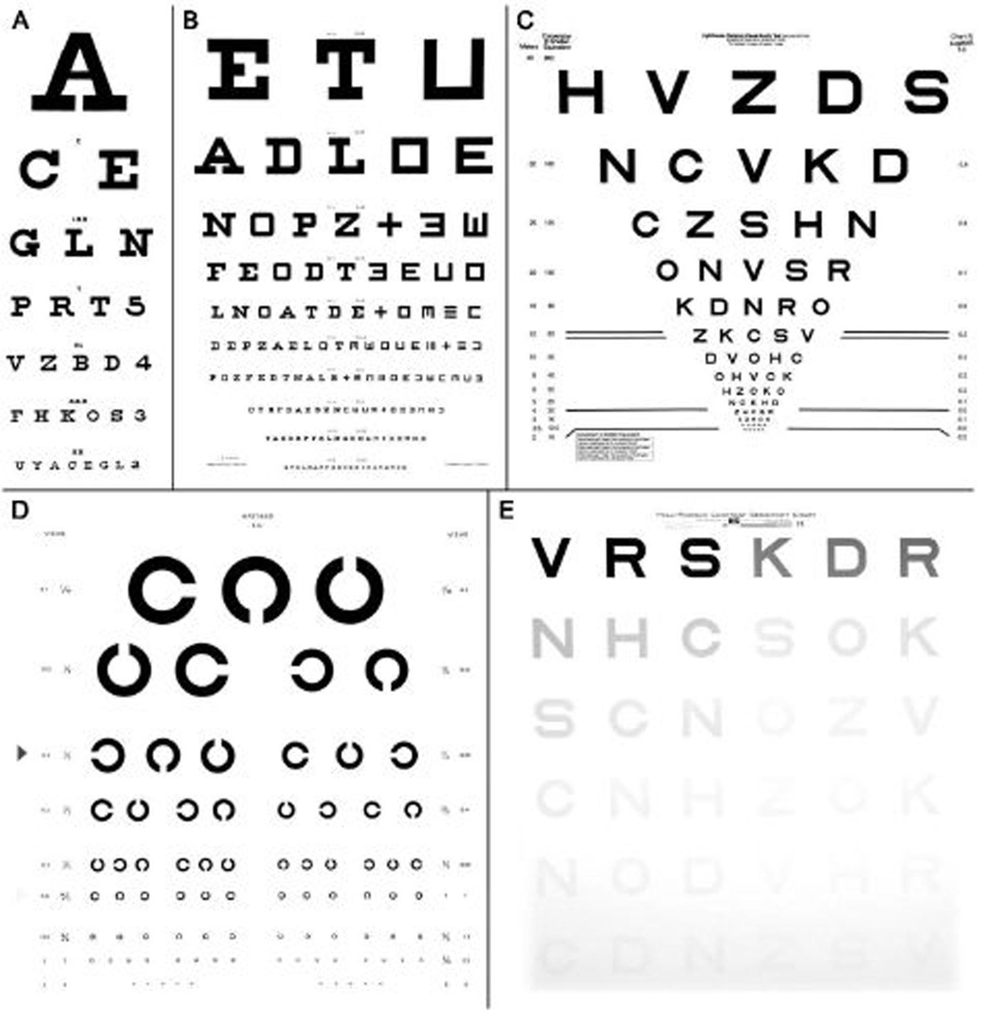 c4bdcbaa91dfa1 Oog- en visuele systeemaandoeningen