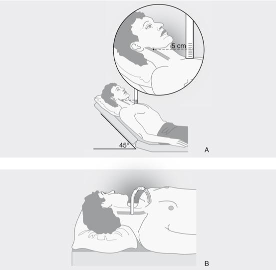 3 Anamnese en lichamelijk onderzoek bij verdenking hartlijden ...