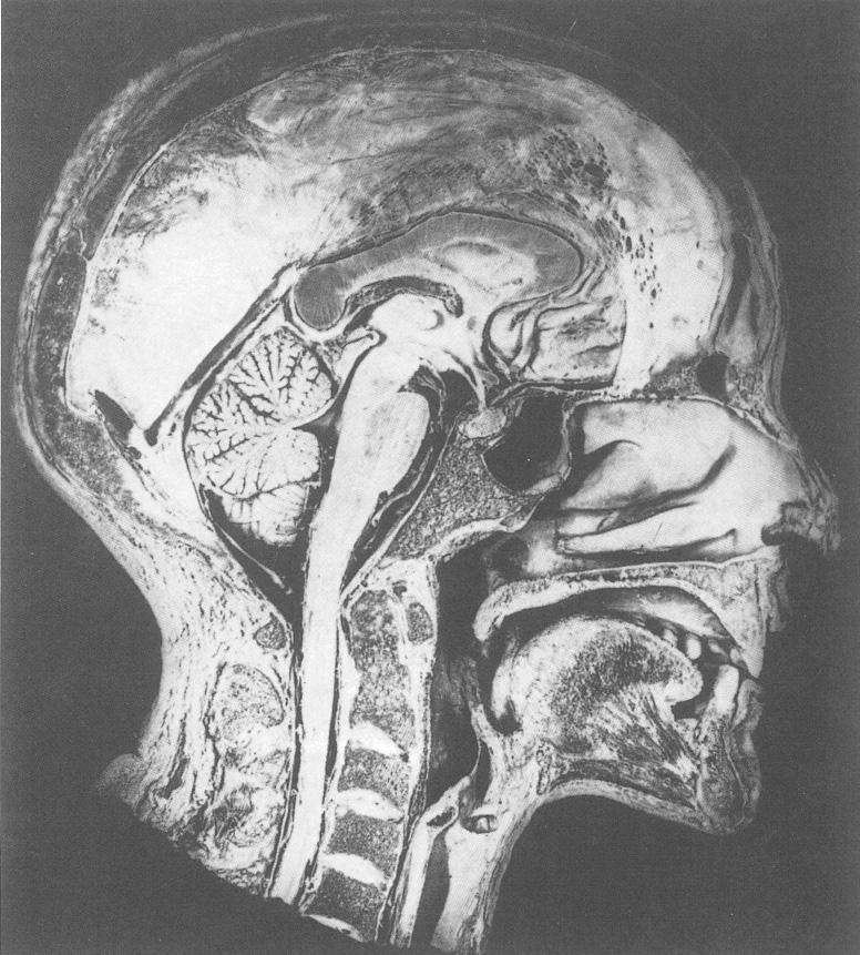 Fysiologische en anatomische aspecten van spierfunctie | SpringerLink
