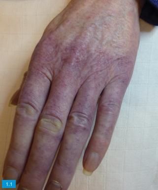 sclerodermie huid
