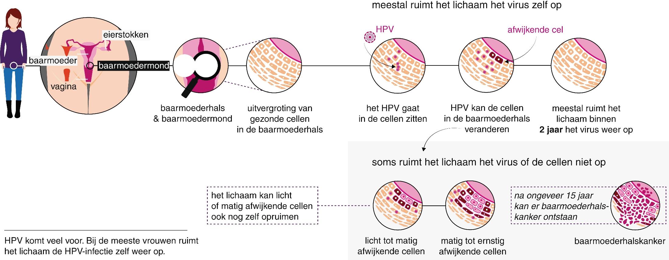 Hpv virus zelf opruimen - etigararunway.ro