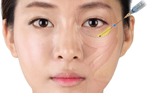 Clinical Anatomy of the Midface for Filler Injection | SpringerLink