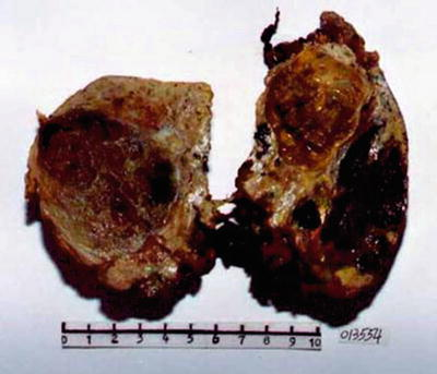 Tumor-Like Lesions of the Liver and Intrahepatic Bile Duct