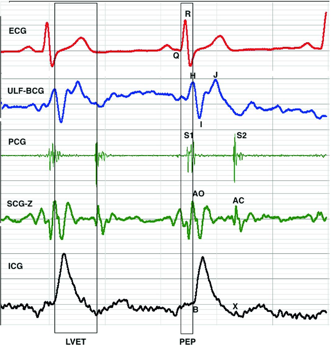 Cardiac Mechanical Signals | SpringerLink