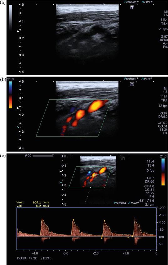 Unstable Carotid Artery Plaque Evaluation by Ultrasound | SpringerLink