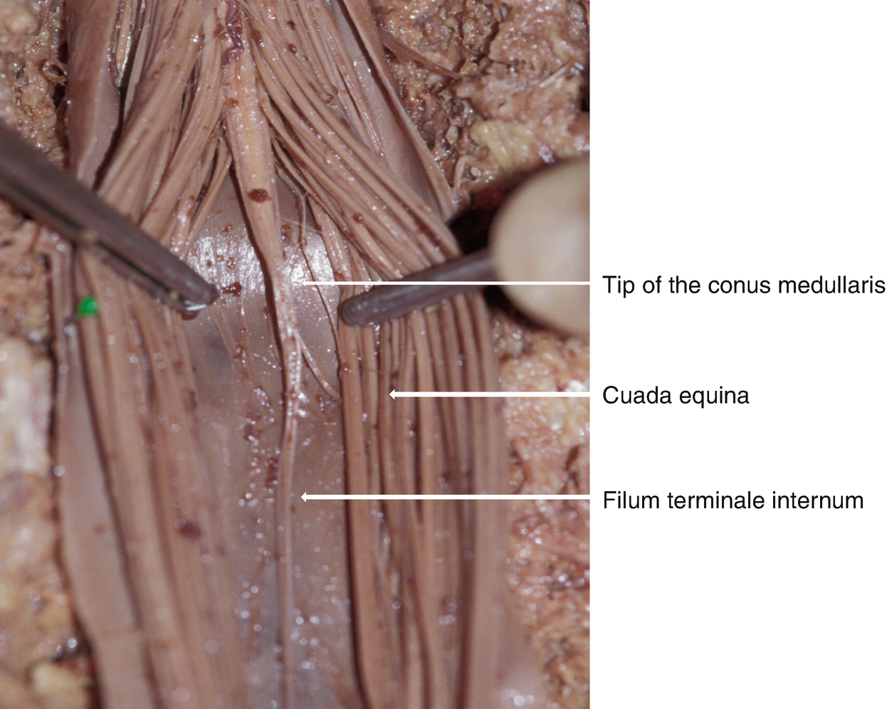Cauda Equina Injuries Springerlink The filum terminale is a delicate strand of fibrous tissue, about 20 cm in length, proceeding downward from the apex of the conus medullaris. cauda equina injuries springerlink