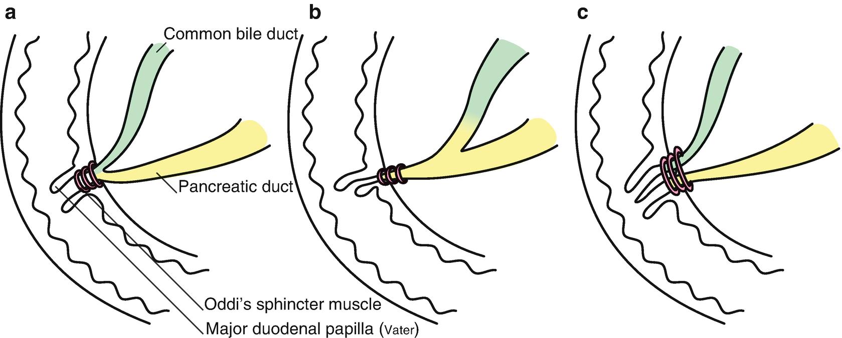 Modern Pancreatic Divisum Anatomy Pattern - Human Anatomy Images ...
