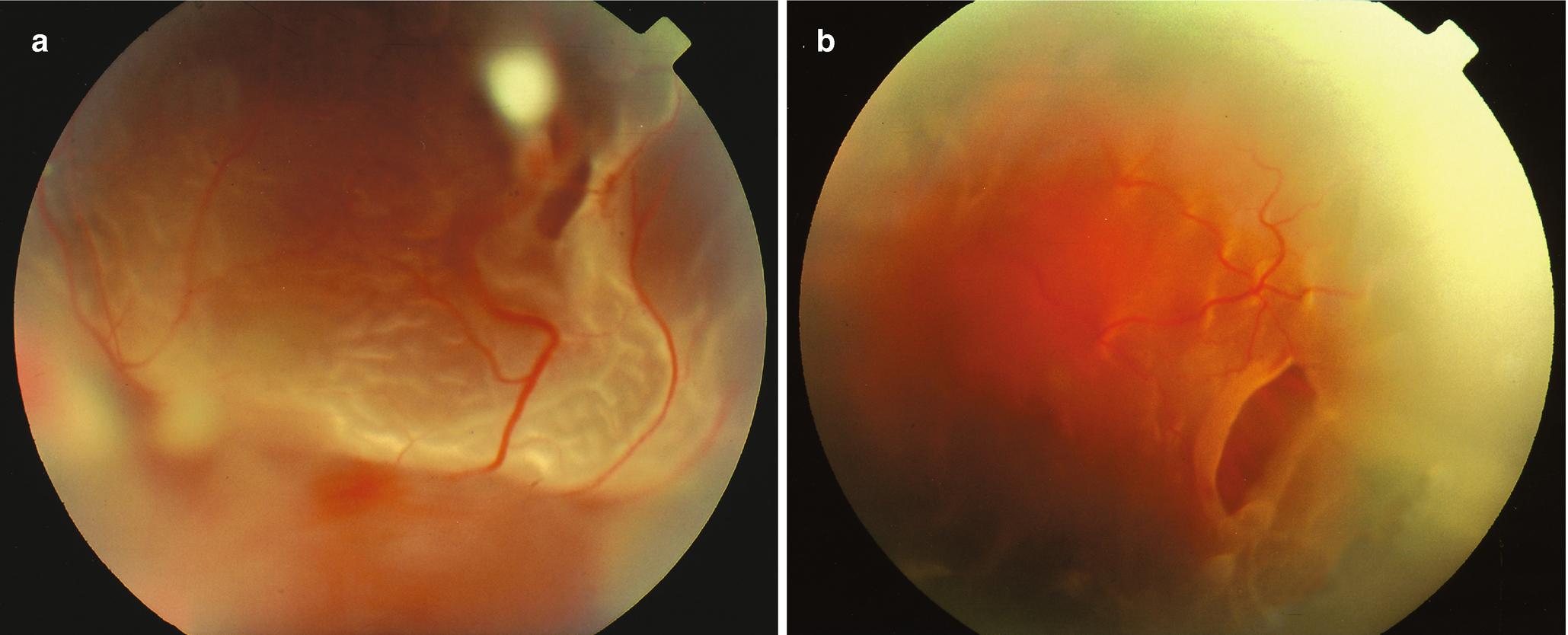 myopia retinal detachment