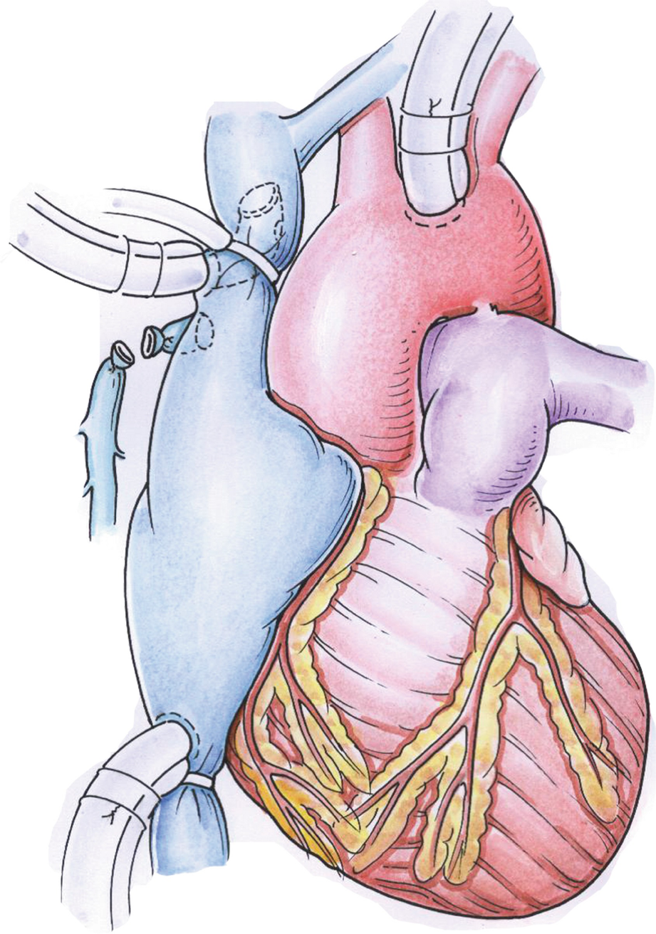 Qiao S Surgery Qiao S Modified Bidirectional Glenn Shunt And Incomplete Fontan Surgery Springerlink