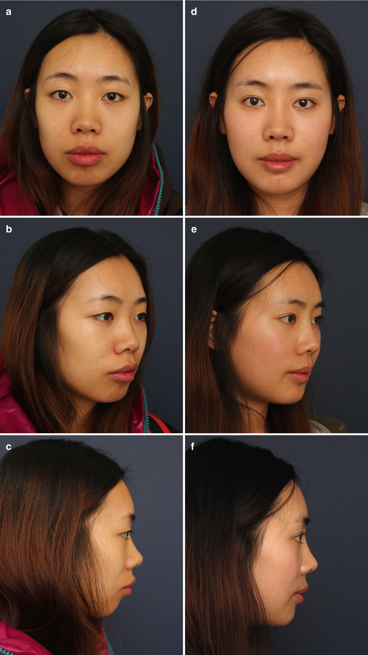 Preoperative Evaluation for Rhinoplasty | SpringerLink