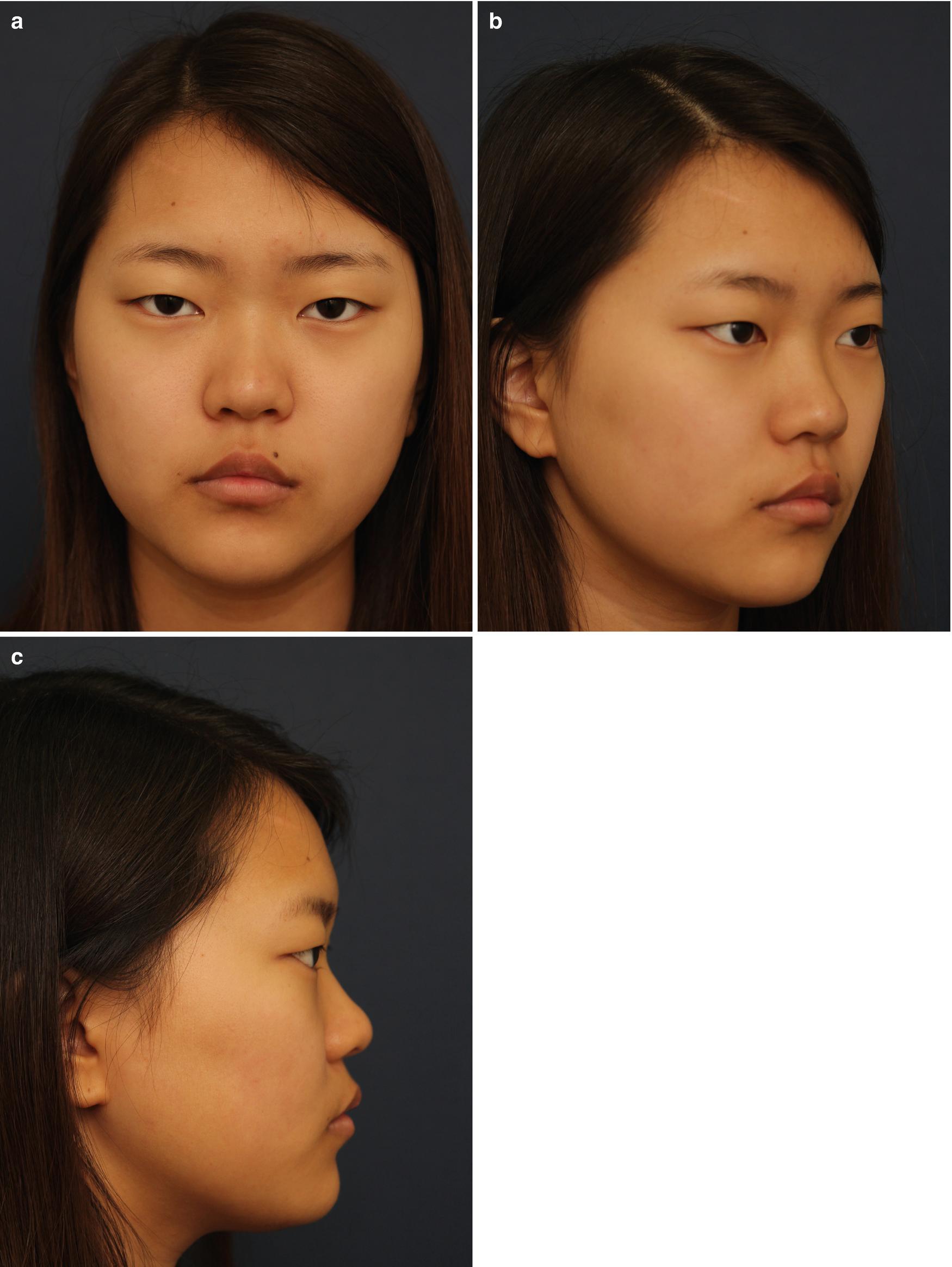 Dorsal Augmentation Using the Implants | SpringerLink