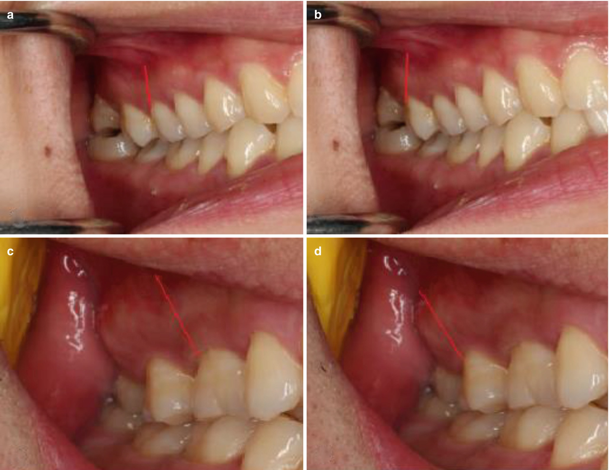 Clinical Technology Of Wisdom Teeth Extraction Springerlink