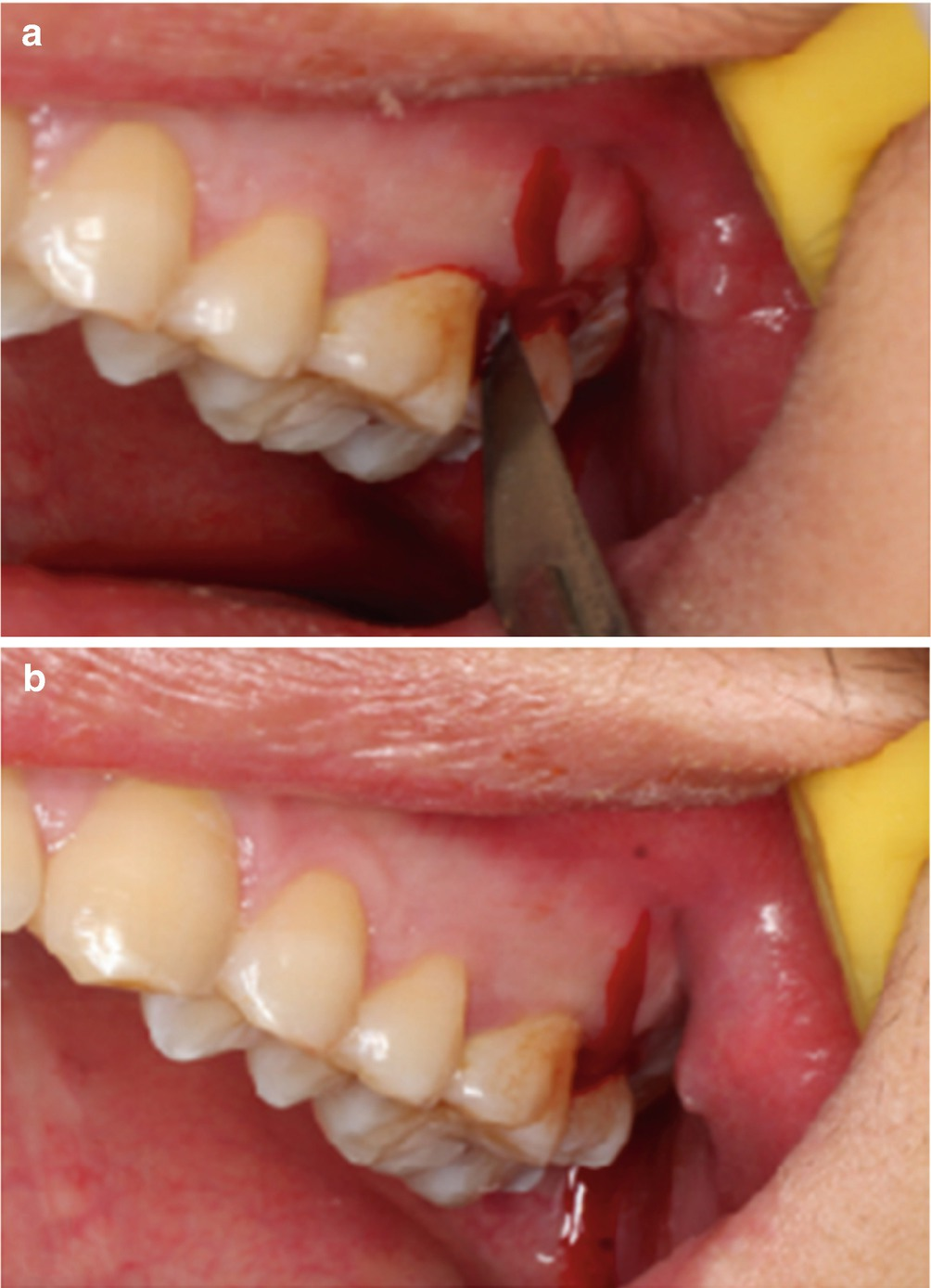 Extraction Of Maxillary Tilted And Impacted Wisdom Teeth Springerlink