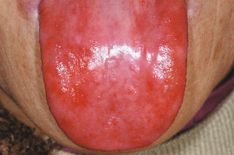Labiolingual Diseases | SpringerLink