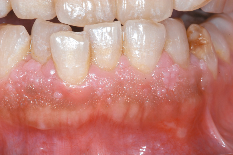 Laser treatment in dentistry - Gingival papilloma causes