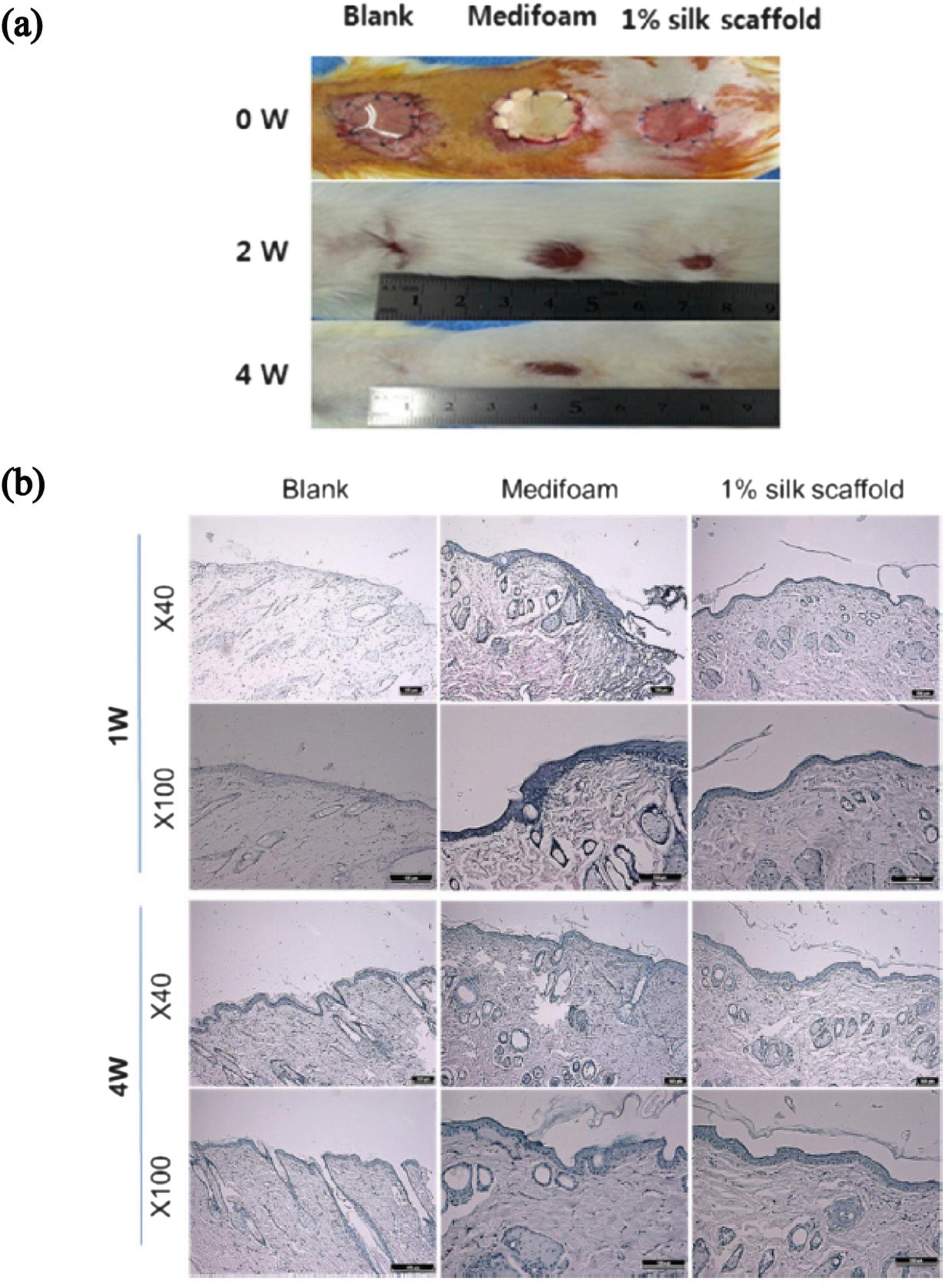 Silk Fibroin-Based Scaffold for Bone Tissue Engineering