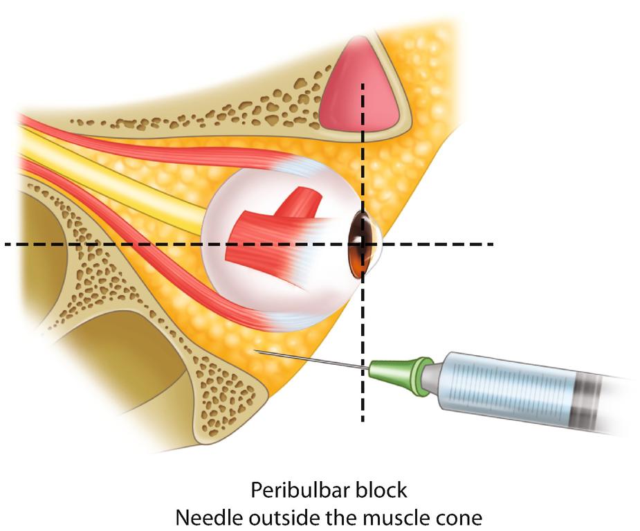 Peribulbar steroid injection otc eczema steroid cream