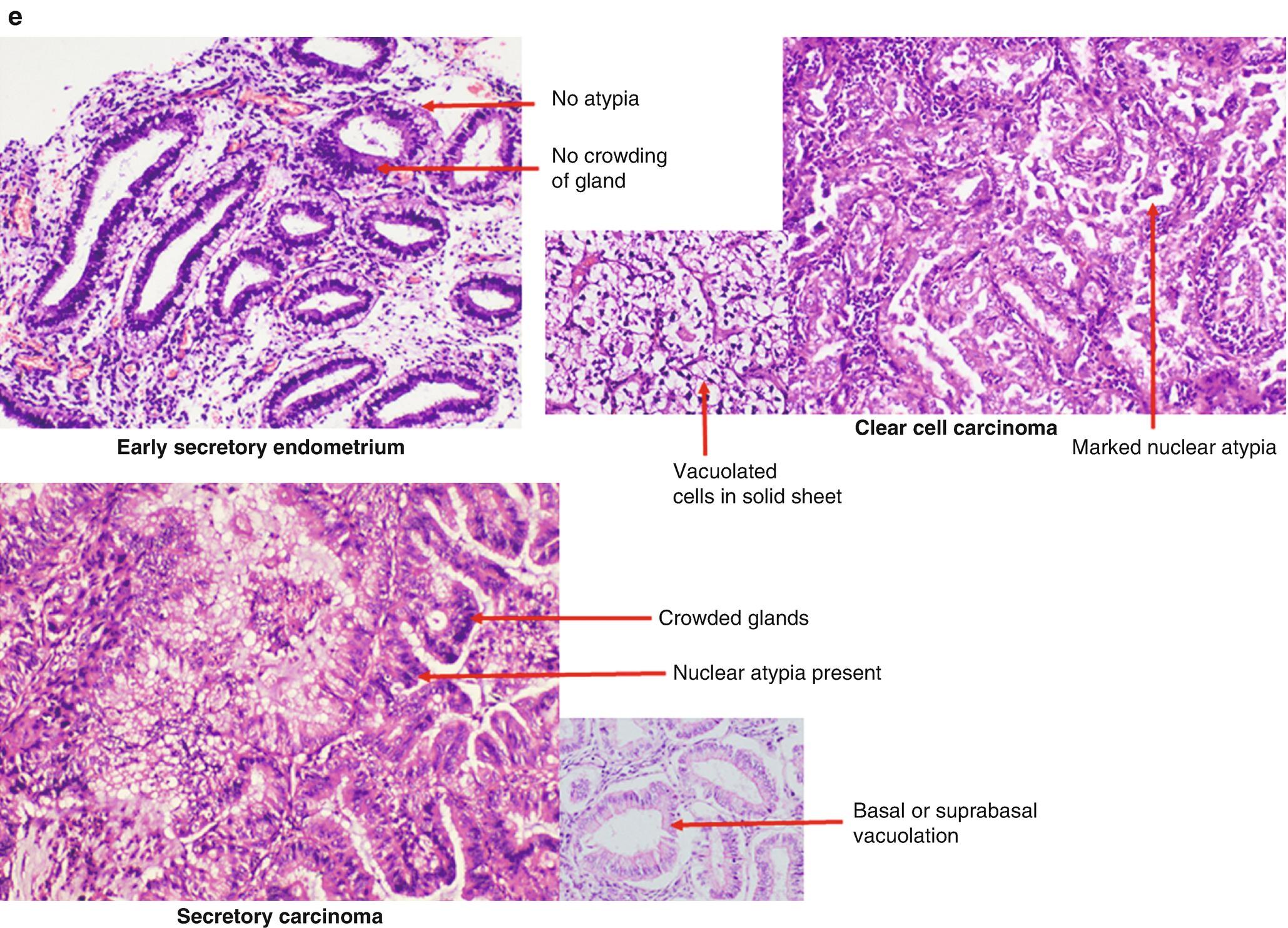 Pathology secretory endometrium Interpretation of