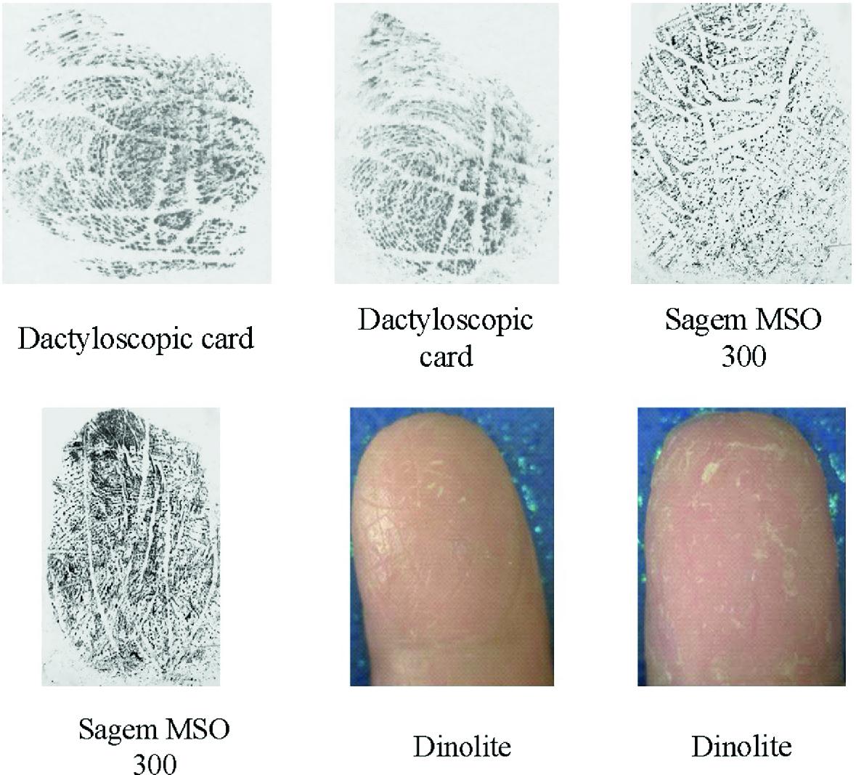 Influence of Skin Diseases on Fingerprints | SpringerLink