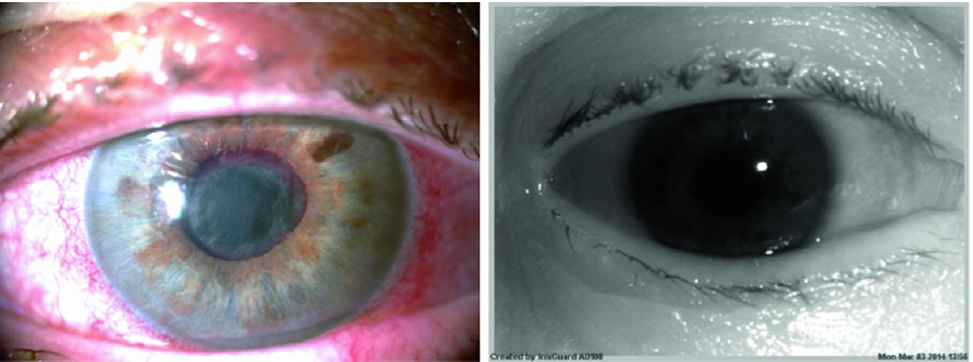 Iris Recognition in Cases of Eye Pathology | SpringerLink