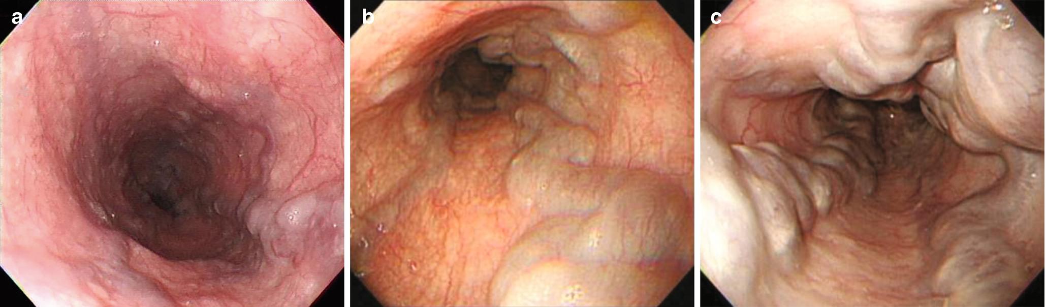 varice tratament fistula