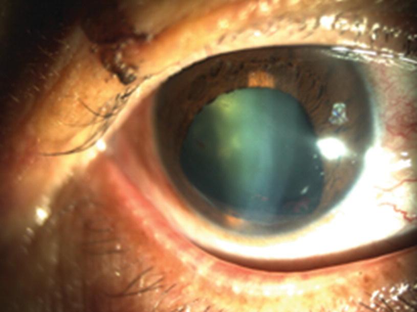 246501098503 Lens Injury