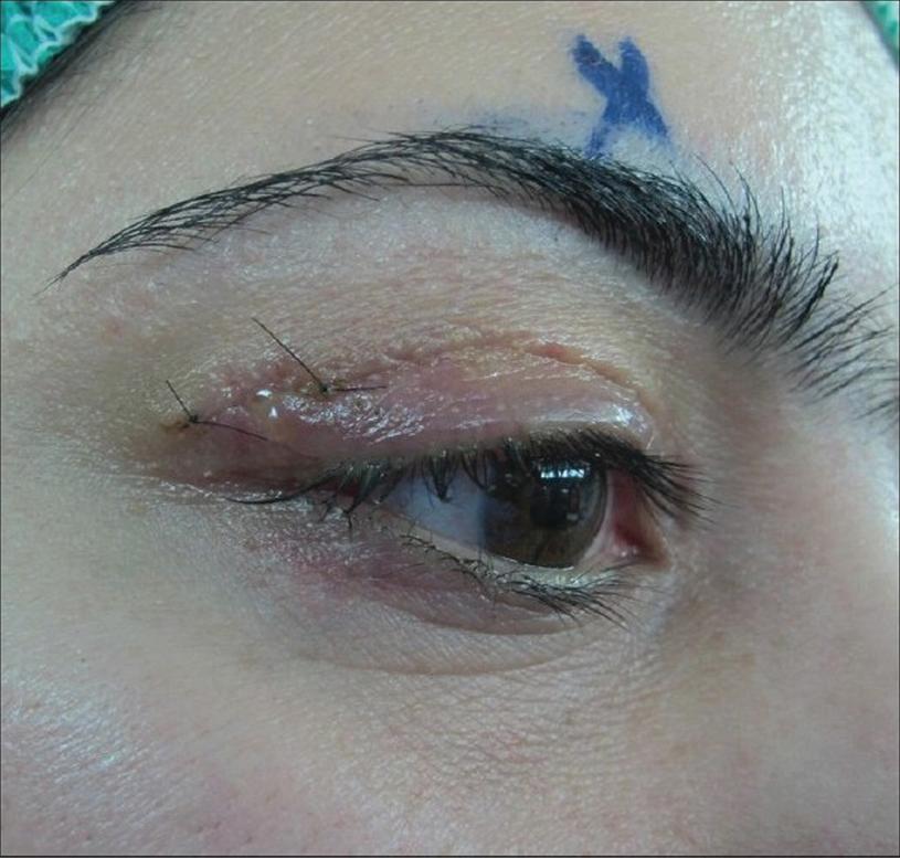 Lacrimal Apparatus Injury | SpringerLink