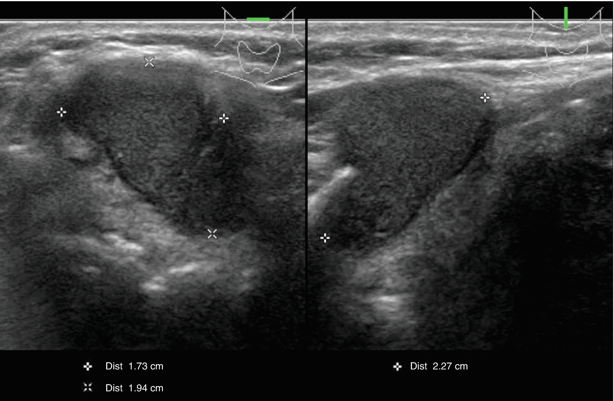 Thyroglossal Duct Cyst and Other Ectopic Thyroid Tissues in the Neck
